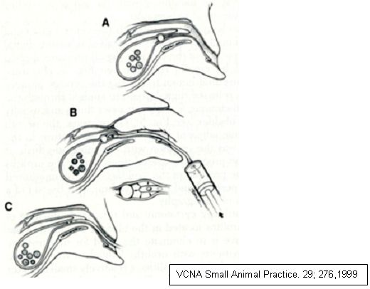 Urethral Obstruction: Techniques to Relieve Obstruction