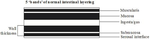 Figure 1. Normal intestinal layering.