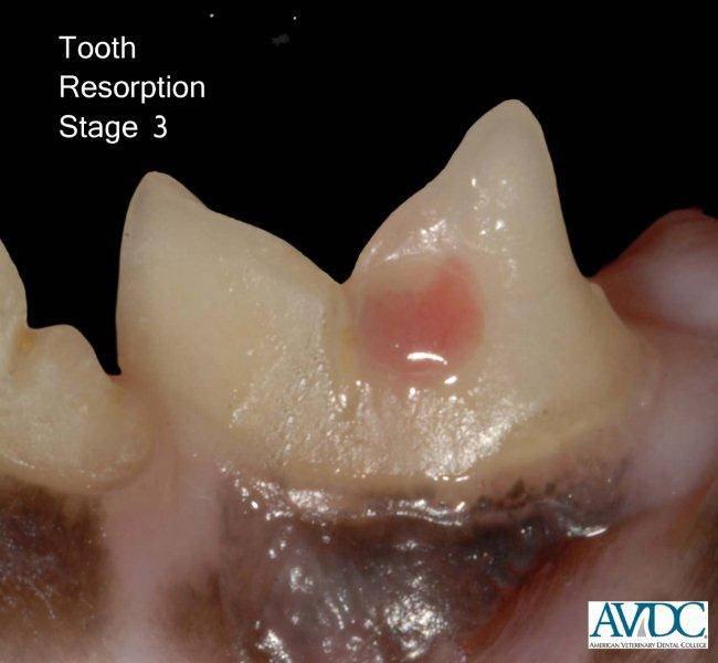 Tooth Resorptive Lesion